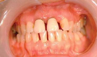 TECH Soins parodontaux mai 2014 13