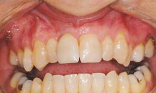 TECH Soins parodontaux mai 2014 4