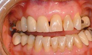 TECH Soins parodontaux mai 2014 8