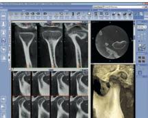 dento-scan3.jpg