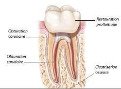 endodontie- mécanisée